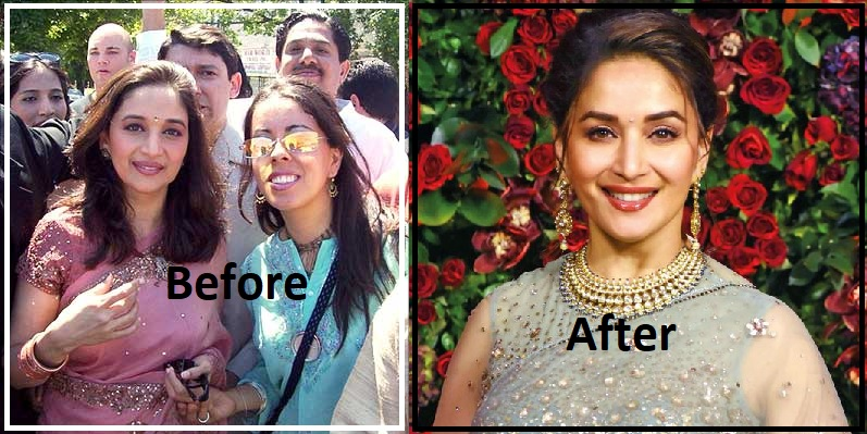 Bollywood Celebrities Before And After Plastic Surgery